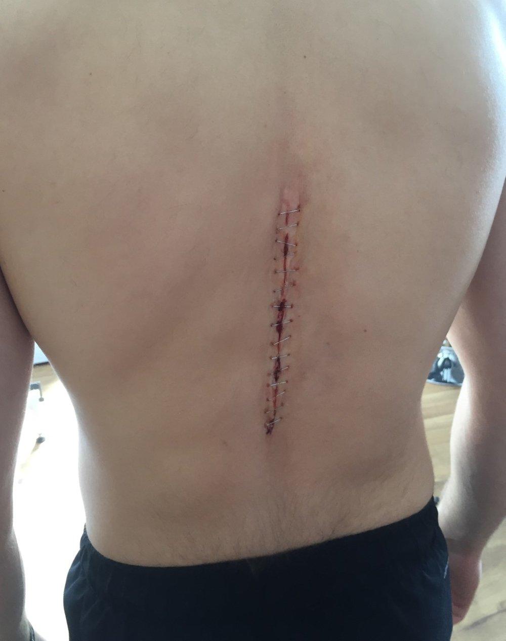 spfx makeup - spinal surgery incision