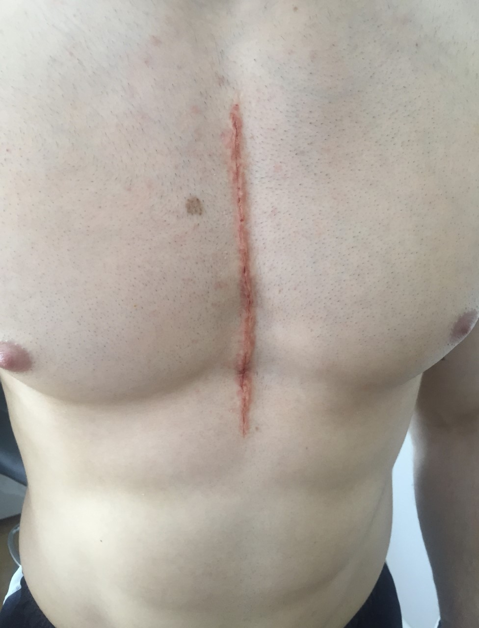 spfx - surgical chest incision
