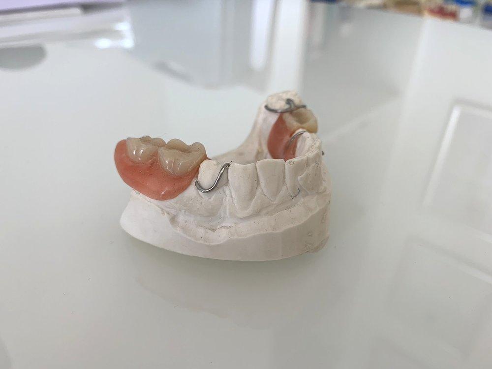 Herausnehm-barer Zahnersatz - Mögliche Zahnersatz-Versorgungen: Herausnehmbarer Zahnersatz (Teil- oder Totalprothetik)