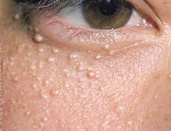Milia  Small, raised, pearly-white or yellowish bumps on the skin. They are most often seen on the skin around the cheeks, nose, eyes and eyelids, forehead and chest but they can occur anywhere on the body.