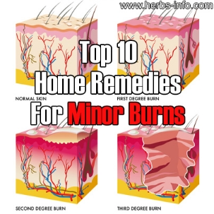 Top-10-Home-Remedies-For-Minor-Burns.jpg