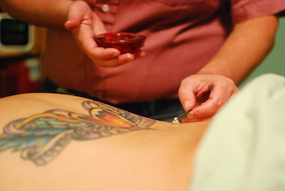 Client receiving Moxibustion warming technique to rebuild energy