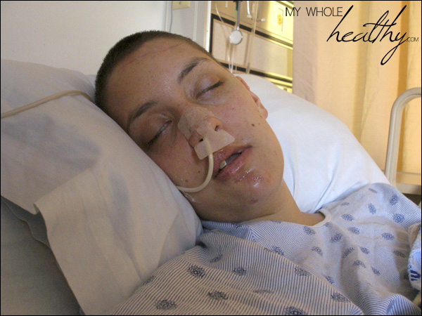 Me, in the hospital post-car accident with a feeding tube inserted through my nose.