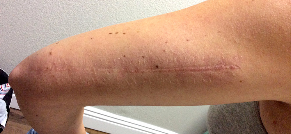 My scar 8 years after surgery but Before we started laser treatment.