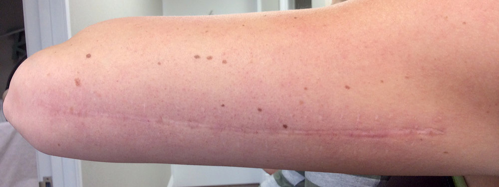 My arm scar healed after the second laser treatment. The skin got a little more red after the second treatment but the scar is shrinking.
