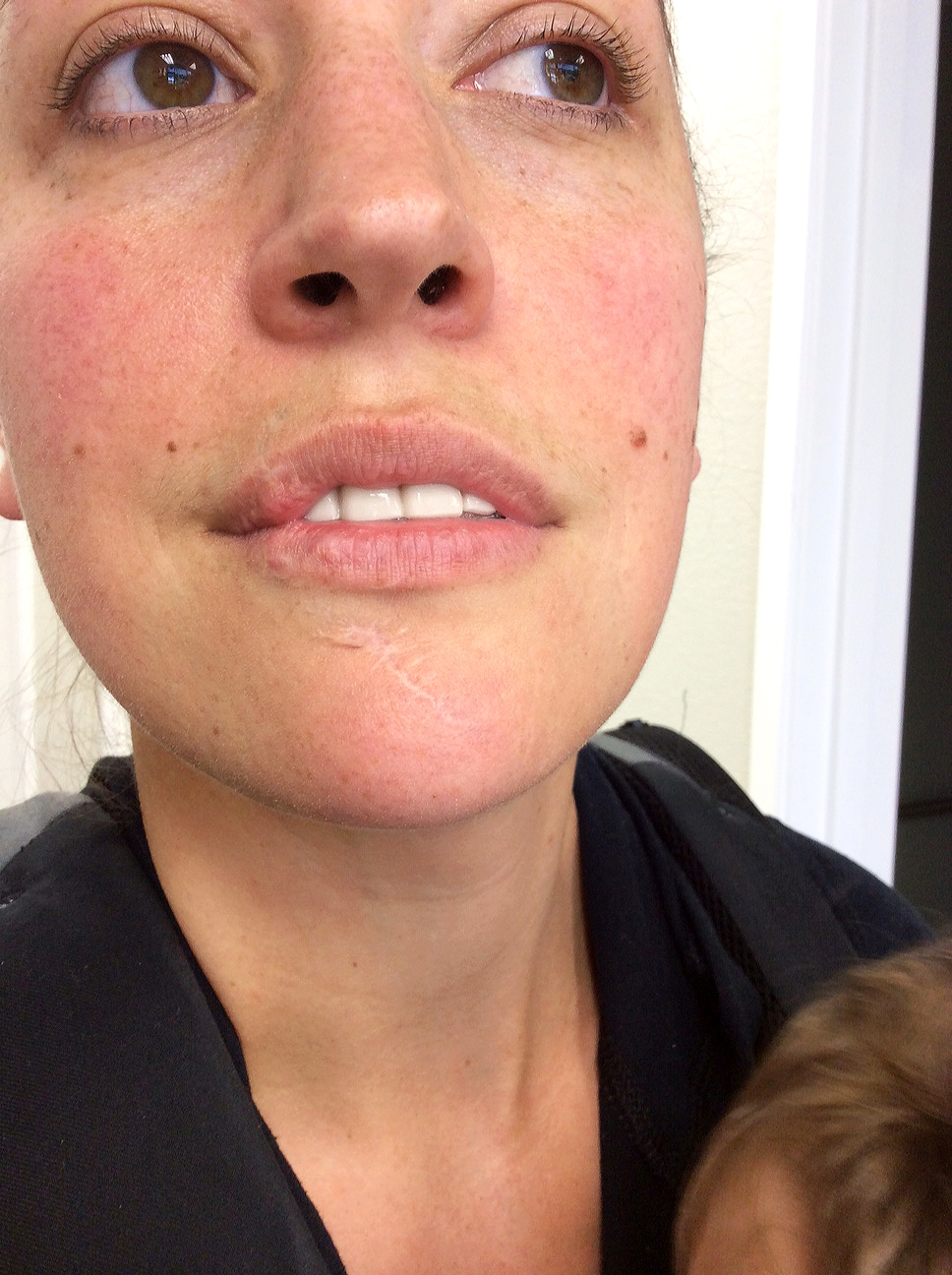 My chin scar, and rosacea before treatment.