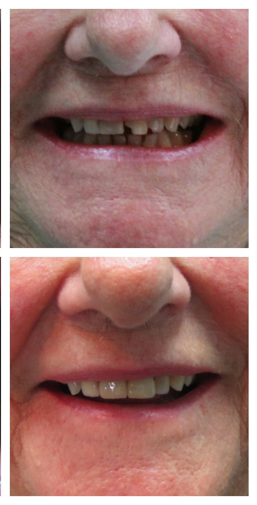 Before & After | Esthetic Porcelain Crowns delivered by Dr. Claustro.