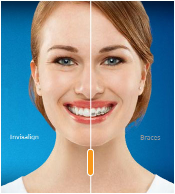 Invisalign comparison to standard metal braces