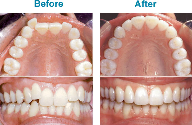 Gain a healthier, more confident smile with Invisalign!