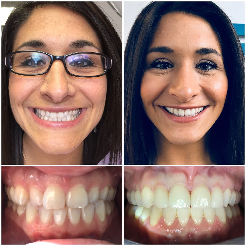 Invisalign Veneers Sterling VA