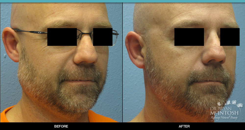 Facial Mass Removal