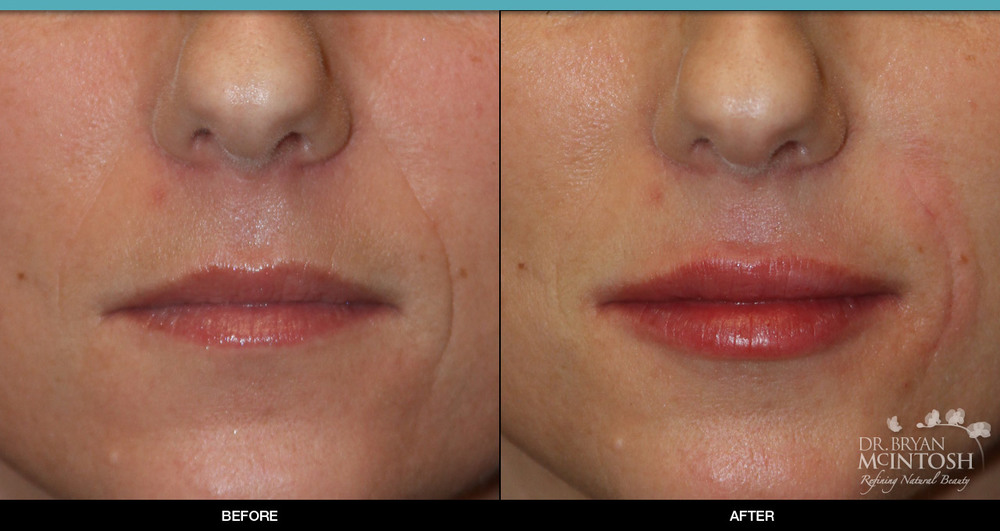 lip-augmentation-9-1.jpg