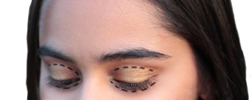 eye lift procedure preparation