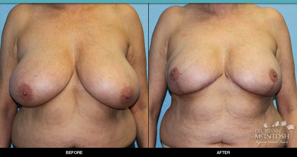 Breast reduction surgery before & after photos, 2nd example