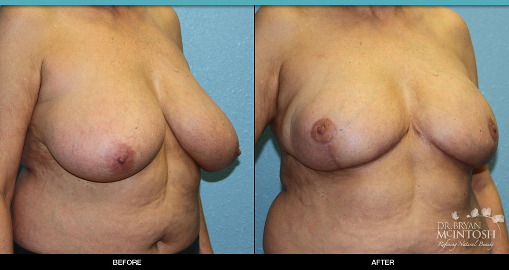 Breast reduction surgery before & after photos, 1st example