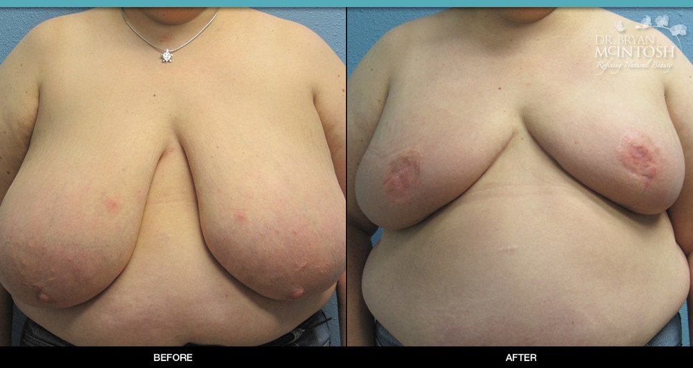 Breast reduction surgery before & after photos, 3rd example