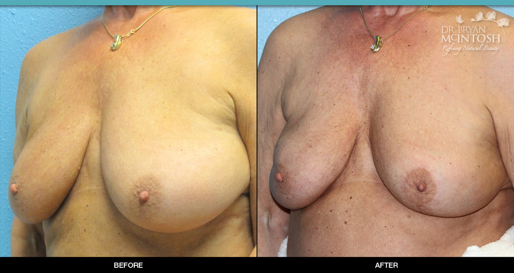 Breast reduction surgery before & after photos, 4th example