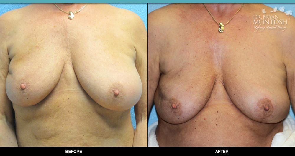 Breast reduction surgery before & after photos, 5th example