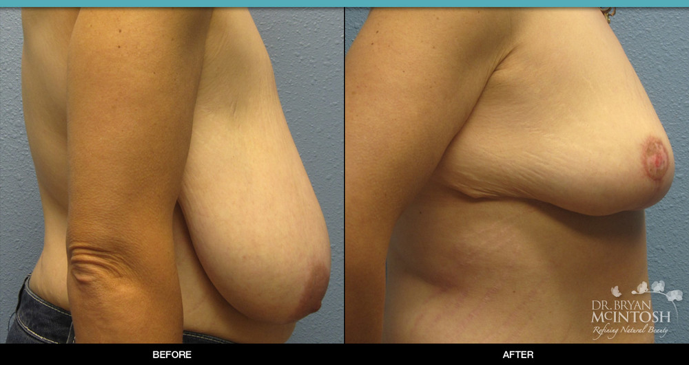 Breast reduction surgery before & after photos, 6th example