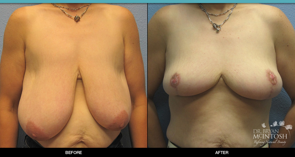 Breast reduction surgery before & after photos, 8th example