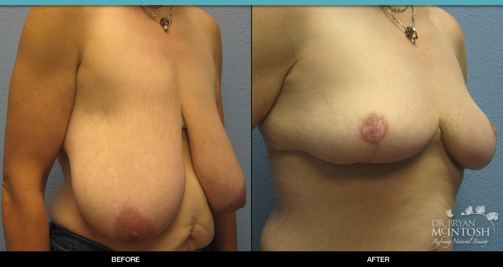 Breast reduction surgery before & after photos, 7th example