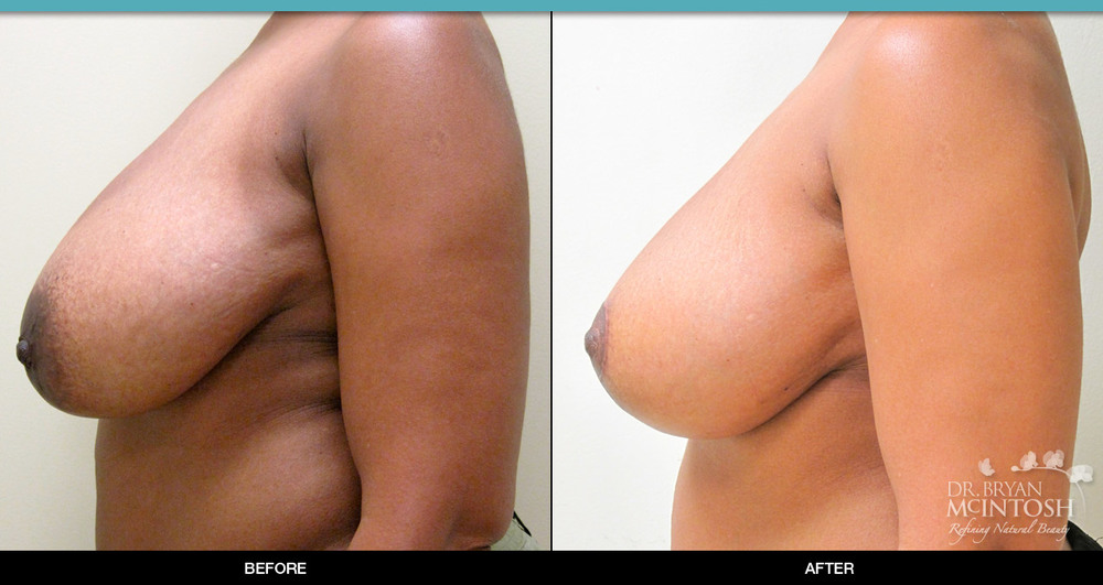 Breast reduction surgery before & after photos, 9th example