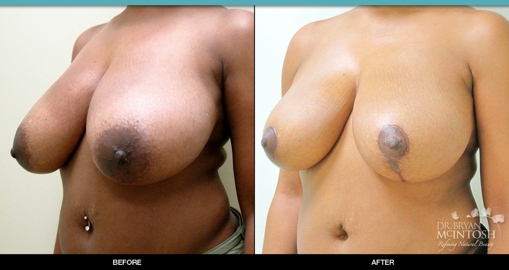 Breast reduction surgery before & after photos, 10th example