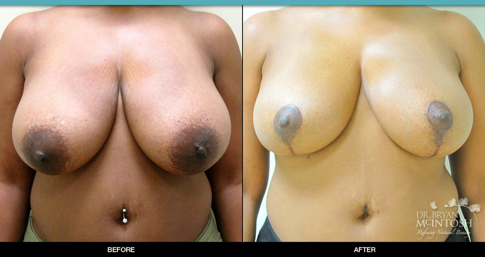 Breast reduction surgery before & after photos, 11th example