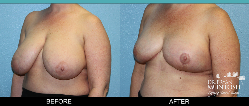 Breast reduction surgery before & after photos, 12th example
