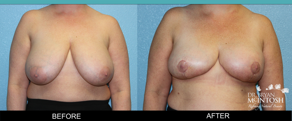 Breast reduction surgery before & after photos, 13th example