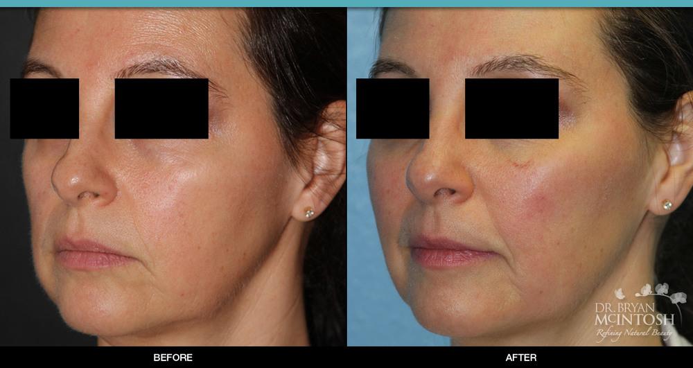Cheek Filler: Before & After