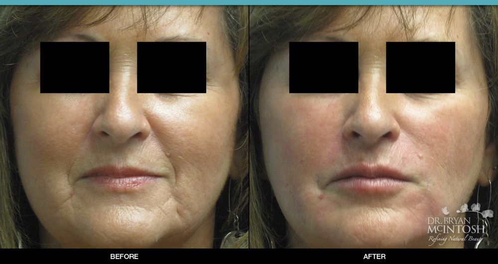 Facial Filler: Before & After