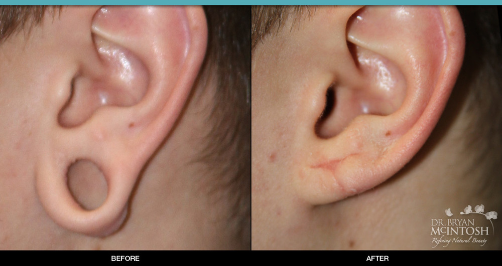 Earlobe Reconstruction: Before & After