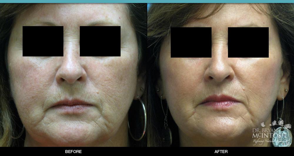Laser Skin Resurfacing: Before & After