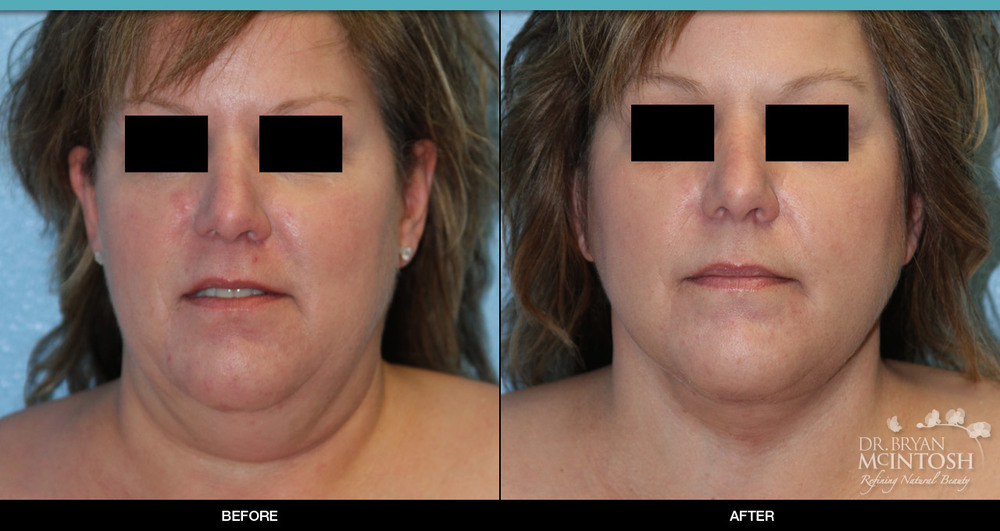 Neck Lift: Before & After