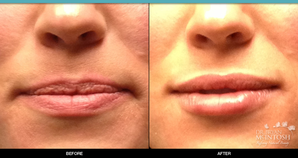 Lip Augmentation: Before & After