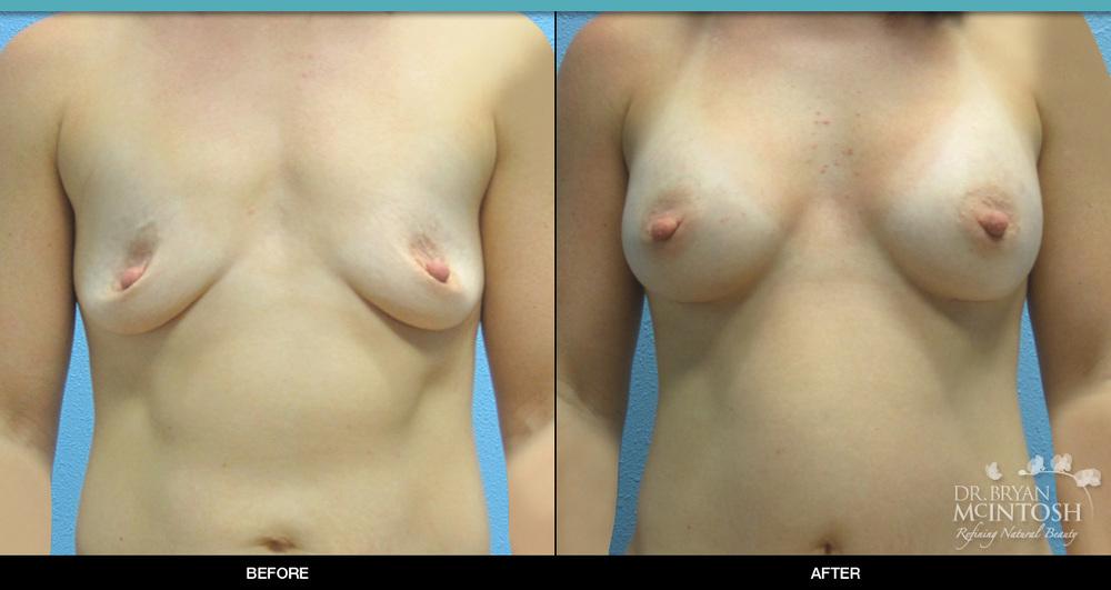 breast-augmentation-2-1.jpg