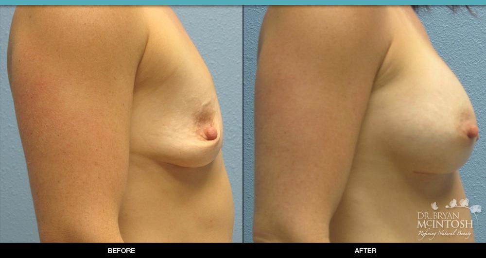 breast-augmentation-2-3.jpg