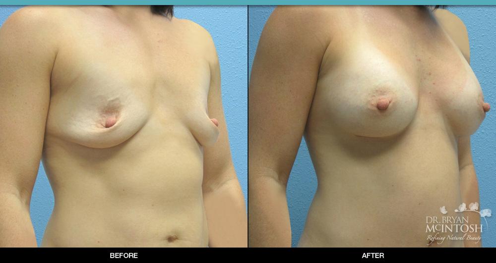breast-augmentation-2-2.jpg