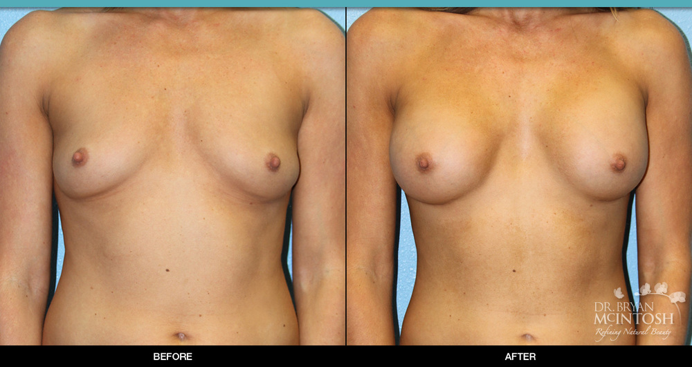 breast-augmentation-7-1.jpg