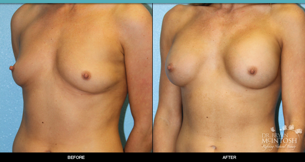 breast-augmentation-7-2.jpg