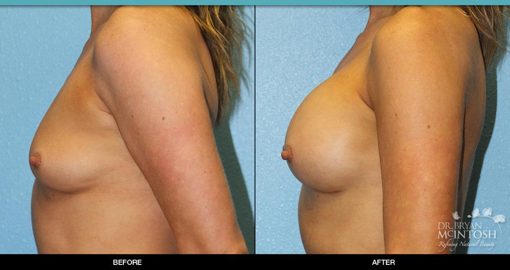 breast-augmentation-7-3.jpg