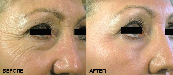 SKin Revitalization Treatment with the Palomar Icon Laser
