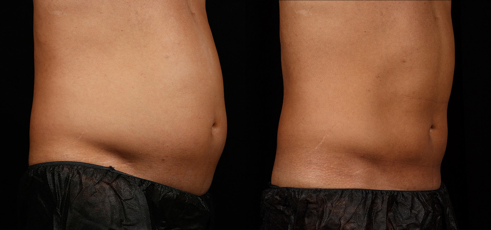 SculpSure Before & After 12 Weeks