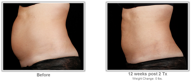 Before & After SculpSure  * Individual treatment results may vary.