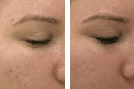 Before & After: Automated Micro-Needling Treatment