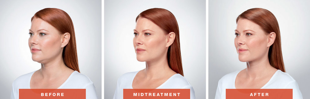 Before, Midtreatment & After Kybella Half-turn