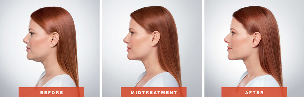 Before, Midtreatment & After Kybella Side View