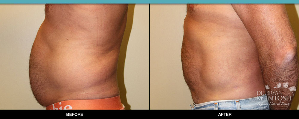 Liposuction Before & After   *INDIVIDUAL TREATMENT RESULTS MAY VARY.