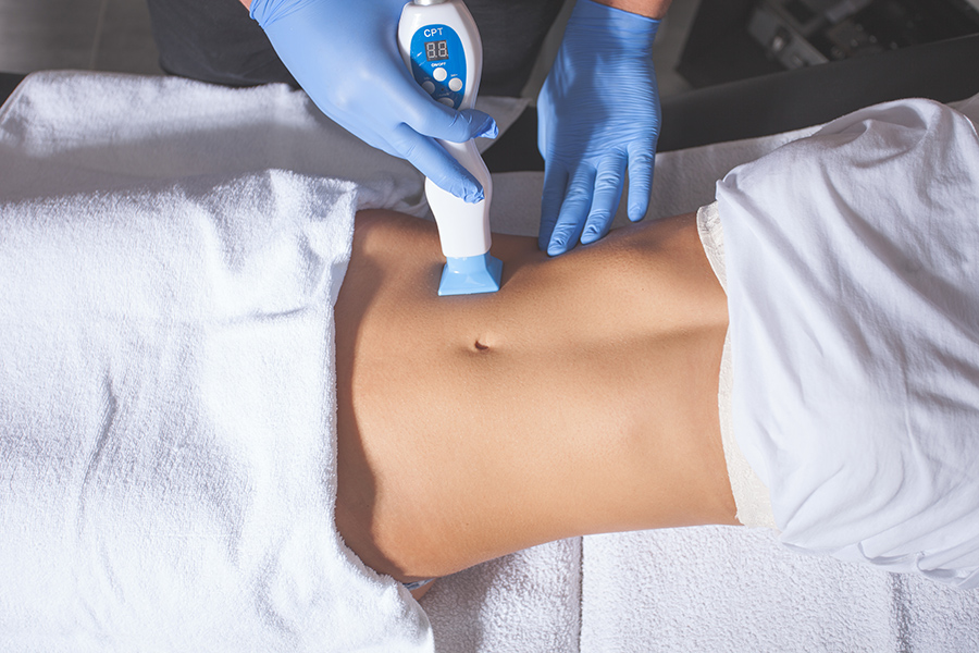 laser-based fat removal Procedure